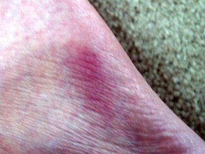 edge of foot