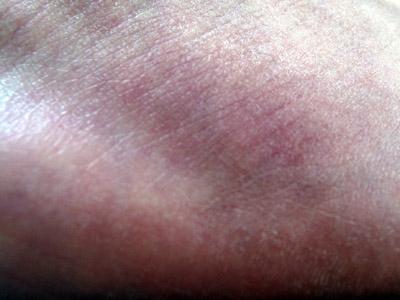 close up of bruising