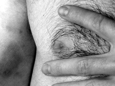 hairy nipple, bruised bicep